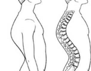 Những thói quen xấu gây ảnh hưởng đến khung xương