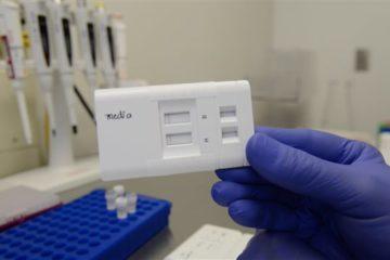 Bộ test đặc biệt giúp chẩn đoán bệnh truyền nhiễm