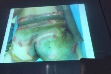 Bỏng nặng đùi, bộ phận sinh dục do bật lửa ga phát nổ và lời cảnh báo
