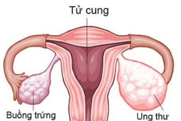 Hình ảnh buồng trứng phụ nữ
