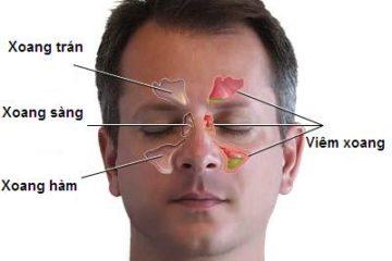 Rửa mũi hàng ngày để phòng bệnh