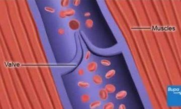 Cách sử dụng thuốc phòng huyết khối, nghẽn mạch tốt nhất