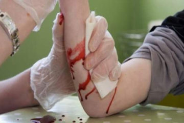 Nguyên tắc cầm máu bằng garo