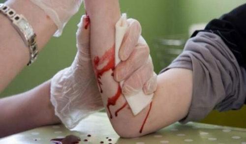 cầm máu bằng garo