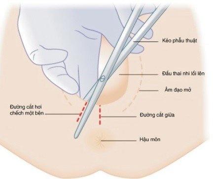 cắt khâu tầng sinh môn