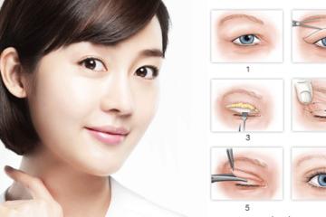 Nguyên nhân mí mắt chảy xệ và cách điều trị