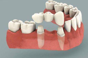 Làm cầu răng hay cắm implant cho răng mất sẽ tốt hơn?