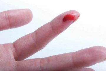 cầm máu nhanh tại nhà