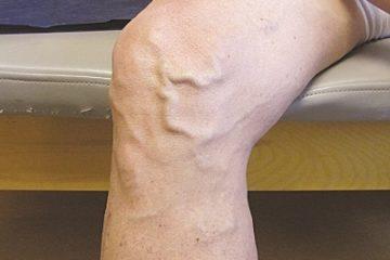 Cơ chế giãn tĩnh mạch chân và một số biện pháp điều trị bệnh giãn tĩnh mạch