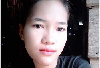 Cô gái 18 tuổi biến dạng mặt sau nhổ răng do vi khuẩn tấn công