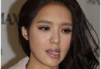 Cô gái 22 tuổi méo một bên mặt do để tóc ướt đi ngủ