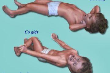 Co giật ở trẻ em nguyên nhân bệnh và xử trí