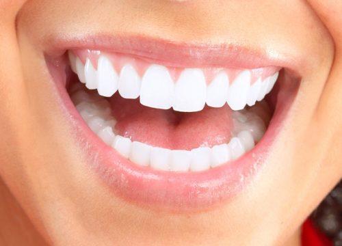 răng trắng đẹp