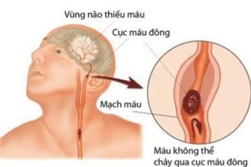 Cơn thiếu máu não cục bộ thoáng qua