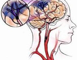 Biểu hiện của cơn thiếu máu não thoáng qua cùng phương pháp phòng ngừa