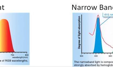 Áp dụng công nghệ NBI trong nội soi chẩn đoán sớm ung thư đường tiêu hóa