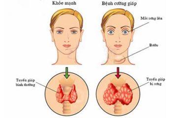 Hội chứng cường chức năng tuyến giáp