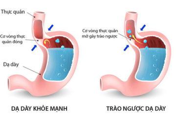 Trào ngược dạ dày thực quản ở trẻ nhỏ triệu chứng và điều trị