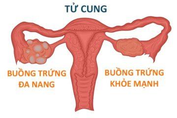 Tổng quan về hội chứng buồng trứng đa nang