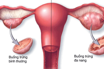 Biến chứng trong điều trị vô sinh ở phụ nữ có hội chứng buồng trứng đa nang