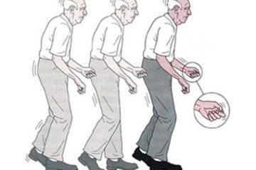 TPHCM: Đặt điện cực vào não chữa Parkinson cho bệnh nhân