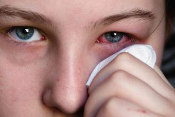 Mắt đau trong những ngày hè
