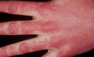 Bệnh viêm đa cơ - Dermatomyotis