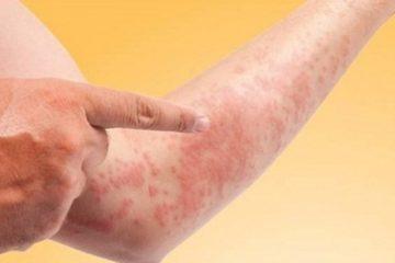 Top 5 nguyên nhân dị ứng da