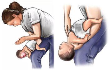 Phương pháp phòng ngừa dị vật đường thở ở trẻ nhỏ