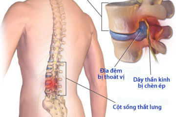 Phòng ngừa đau cột sống thắt lưng và thoát vị đĩa đệm