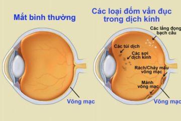 Nguyên nhân gây vẩn đục dịch kính của mắt