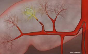 3 bệnh viện đầu ngành ứng dụng thành công điều trị ung thư gan bằng hạt vi cầu phóng xạ Spheres Yttrium 90