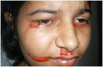 Mắc bệnh hiếm gặp: Bệnh nhi 7 tuổi đổ mồ hôi máu mỗi khi khóc và đau đầu