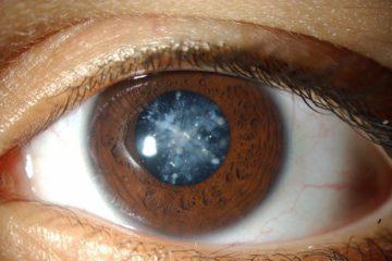 Những bệnh mắt thường gặp ở người già