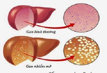 Mách bạn các dấu hiệu khi gan bị nhiễm mỡ
