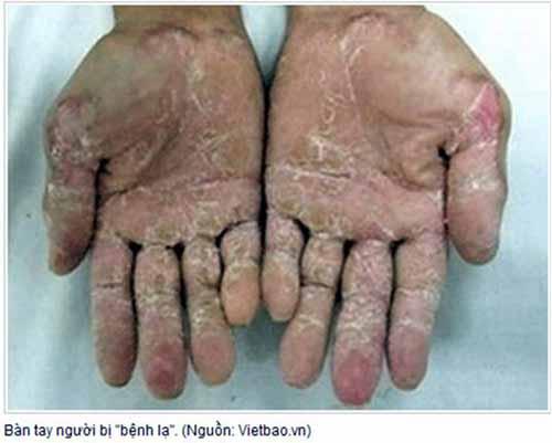 bàn tay bị bệnh ghẻ cóc