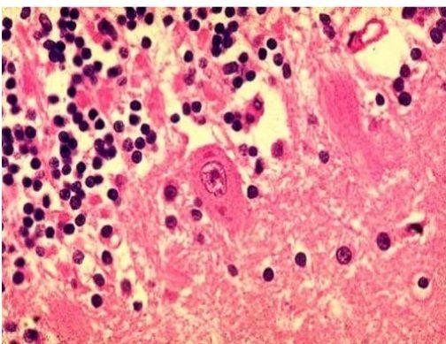 giải phẫu bệnh học tìm virus dại