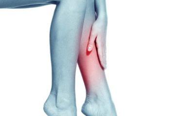 Cảnh báo bệnh giãn tĩnh mạch chân ngày càng trẻ hóa