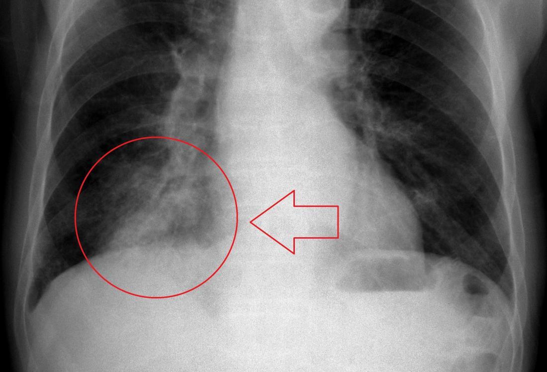 Hình ảnh x-quang người bị phổi