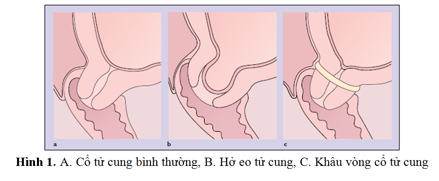 hở eo cổ tử cung