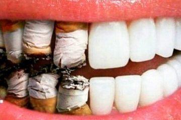 Thuốc lá – Sát thủ của răng miệng