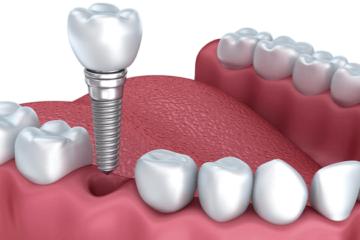 Tại sao phải ghép xương khi cắm implant? Làm sao để biết tôi có phải ghép xương không?