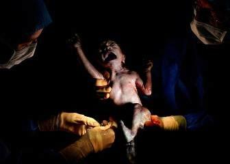 Bộ ảnh: Ngỡ ngàng khoảnh khắc mới sinh của con người