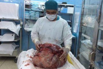 4 năm chung sống với khối u nặng 26kg trong bụng