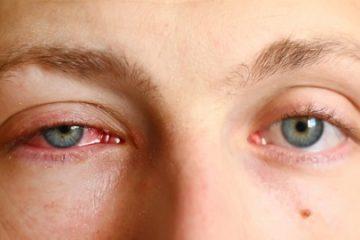Nguy hiểm những loại ký sinh trùng gây hại cho mắt