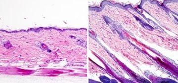 Kích hoạt tế bào gốc mở ra hy vọng mới cho những người hói đầu