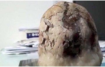 Kinh dị người sống 43 năm với viên sỏi mật nặng 1,5kg