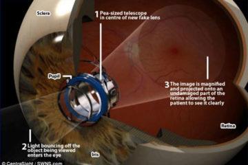 Đột phá kỹ thuật cấy kính viễn vọng trong mắt