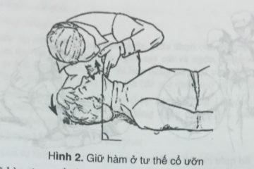 Kỹ thuật cấp cứu ngừng tuần hoàn dành cho điều dưỡng