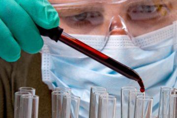 Kỹ thuật NAT phát hiện sớm mẫu máu nhiễm bệnh
